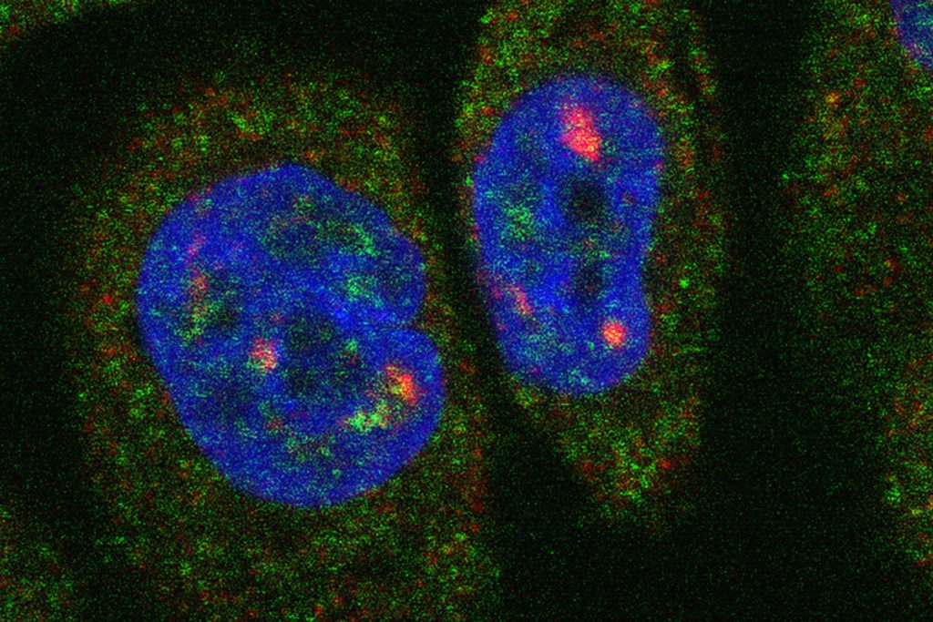 Individual RNA molecules fluoresce inside a breast cancer cell.